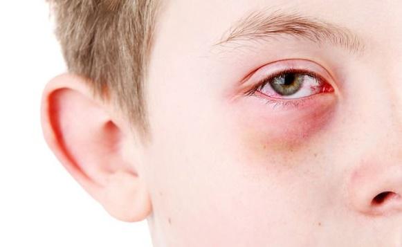 Kan şekerindeki ani değişimler göz sinirlerini vuruyor