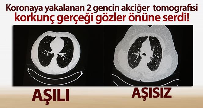 İşte aşılı ve aşısız iki gencin akciğer tomografisi